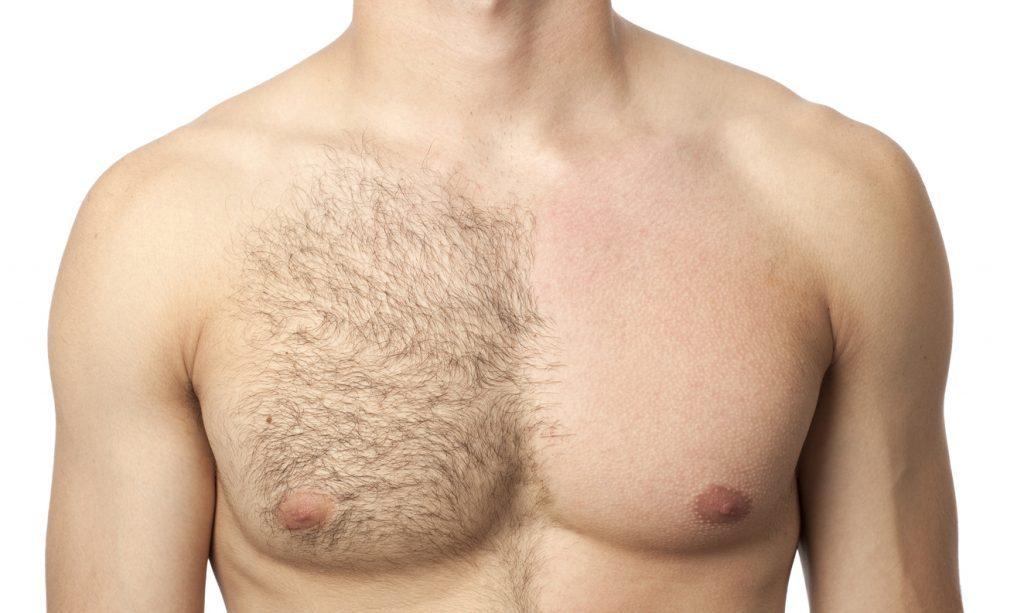 epilazione maschile